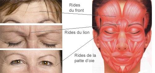 Les rides d'expressions traitées avec le Botox