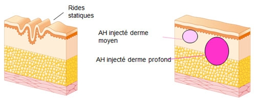 Schéma de l'injection de l'Acide Hyaluronique dans le derme