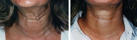 Traitement des cordes platysmales par Botox