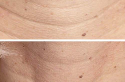 laser co2 fractionn yvelines 78 dr meesseman dermatologue. Black Bedroom Furniture Sets. Home Design Ideas