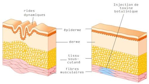Schéma de l'injection du Botox dans le muscle