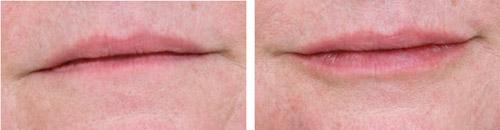 Traitement des lèvres par injection