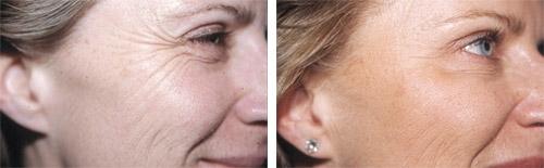 Traitement des rides de la patte d'oie par Botox