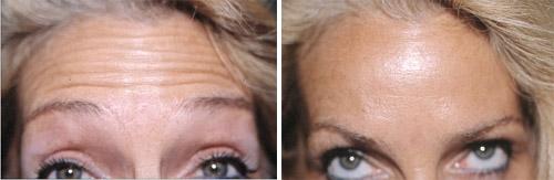 Traitement des rides du front par Botox